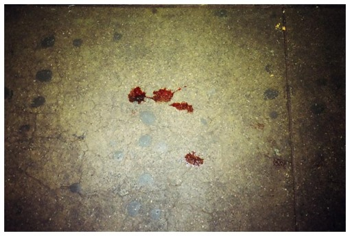 Blood Stains, Clinton Wash C Train, Jul13