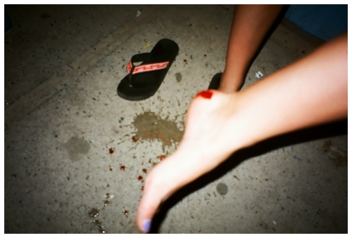 Bloody Foot, Williamsburg, Aug13